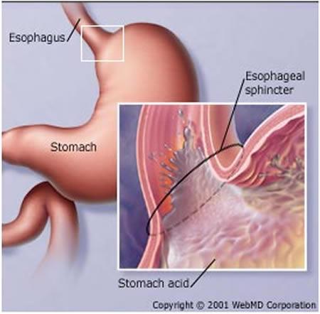 a96773_a489_stomach2